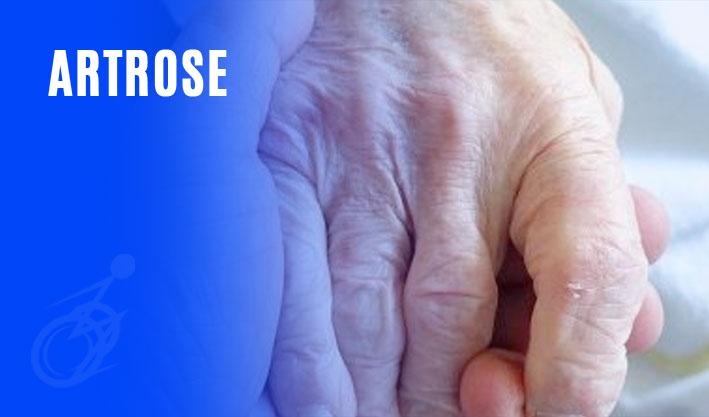 Artrose | AZ Isenções