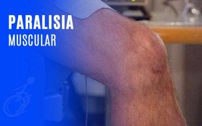 Paralisia Muscular